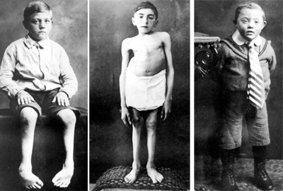 victims Hadamar euthansia camp nazi germany