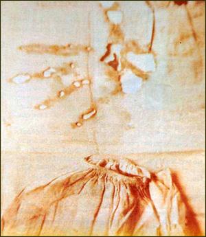 Nightshirt of Joseph Leleux, Poor Souls Museum